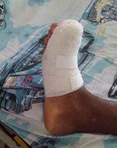 Amputations, foot lacerations and infection